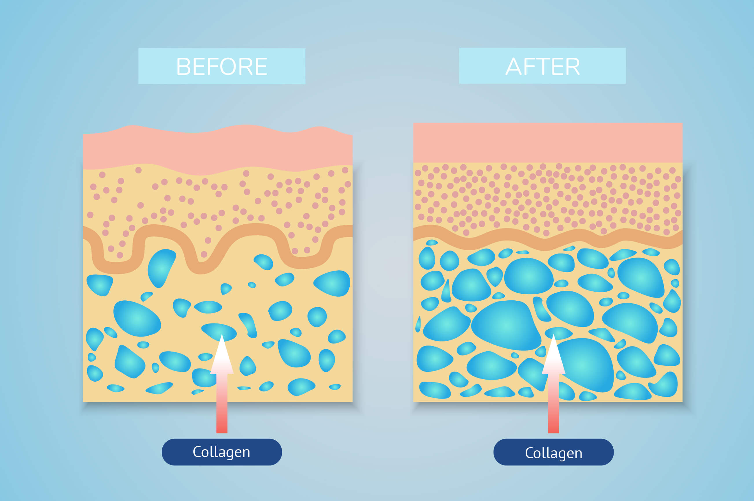 Illustration of the effect of collagen on skin before and after