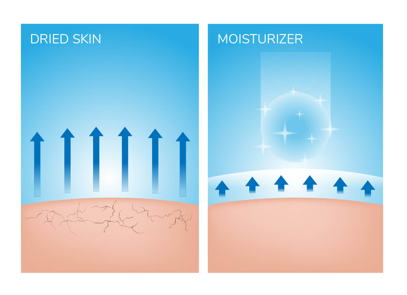 Illustration of dry versus moisturized skin