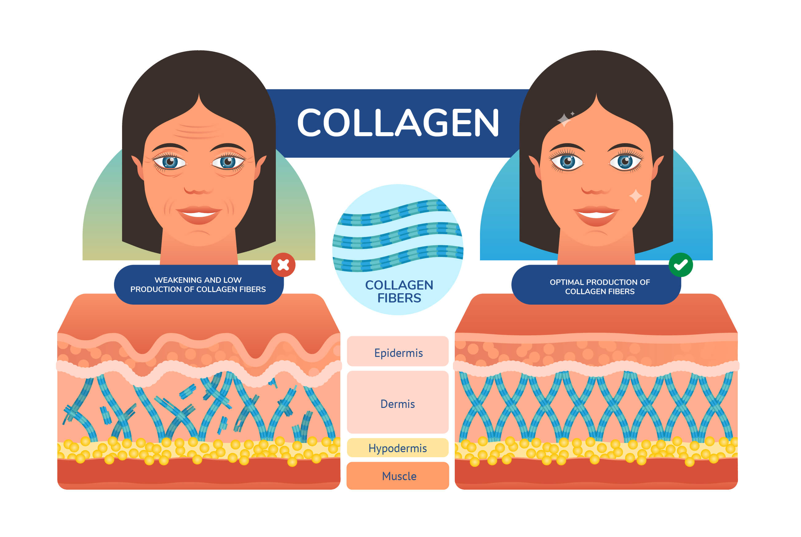 Charts illustrating skin's collagen structure - strong vs weak