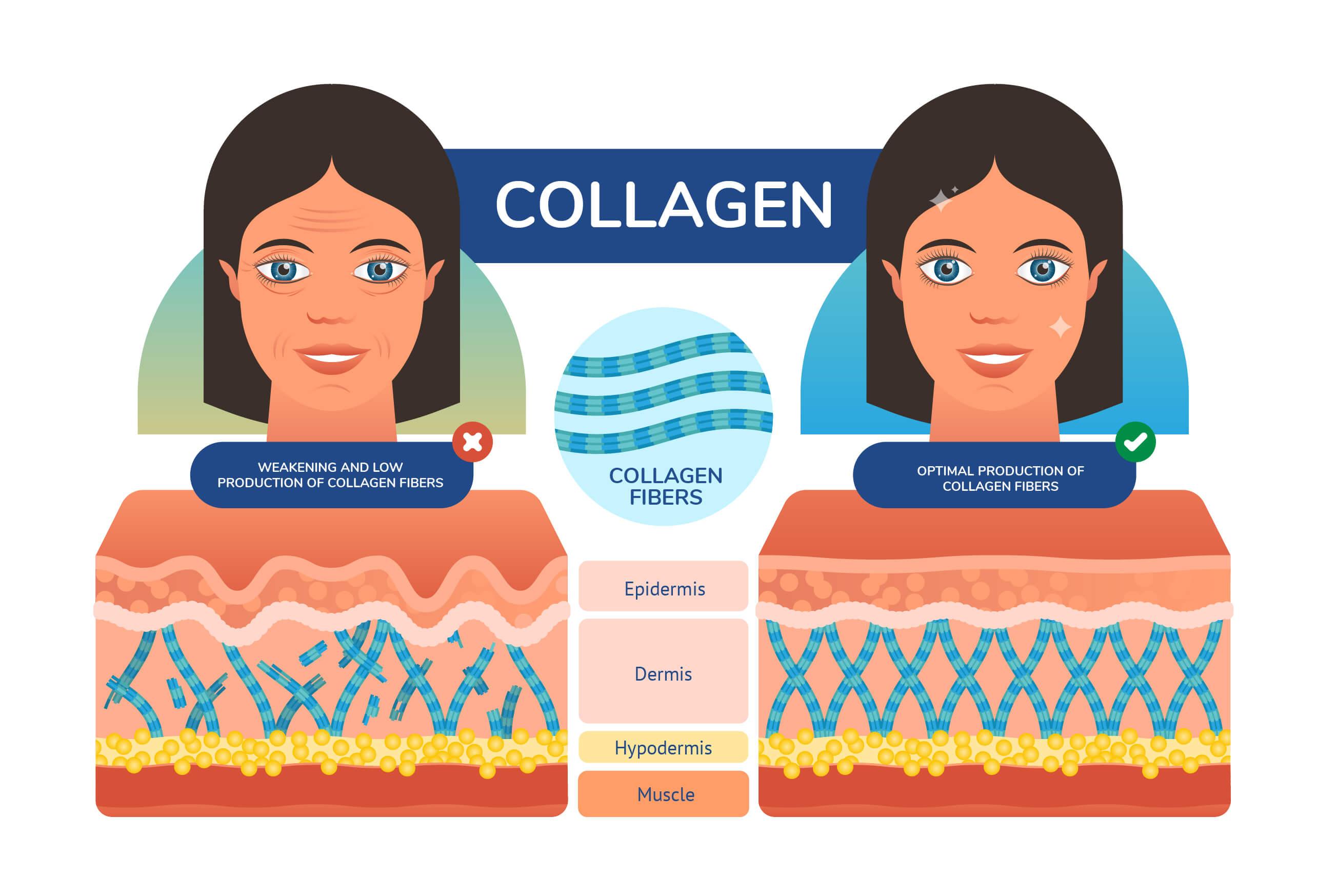 Charts illustrating skin's collagen structure - strong vs weak